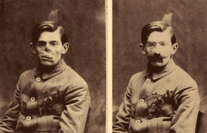Facial wounds on WWI veteran